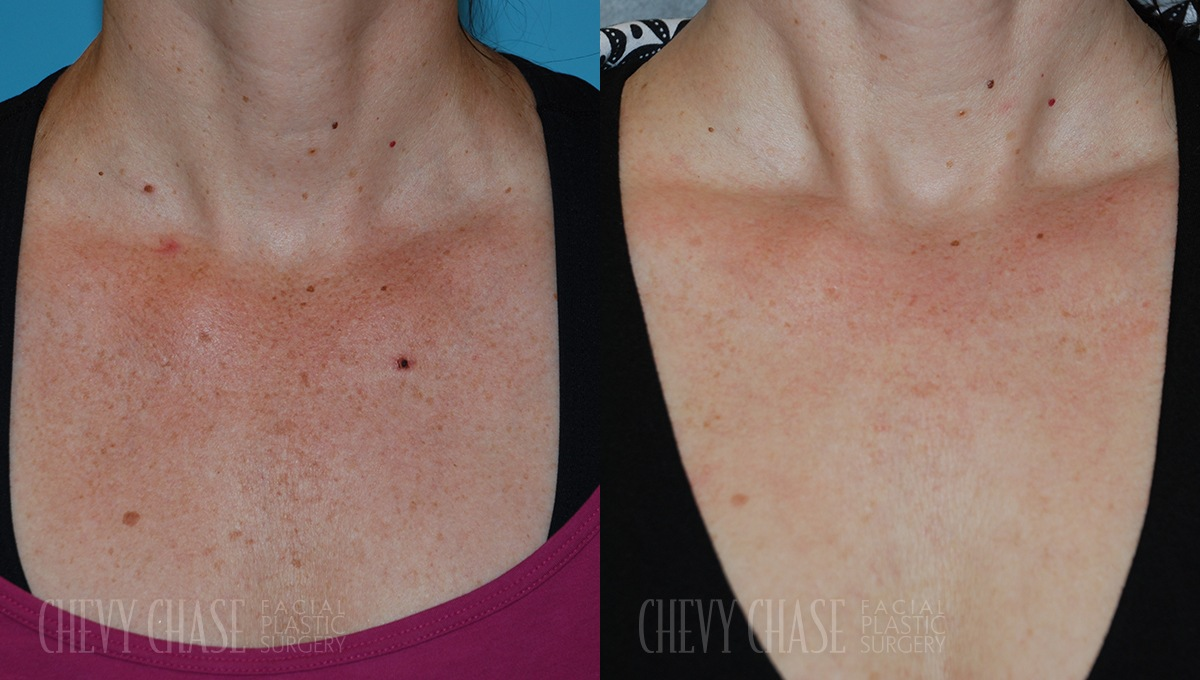 BBL Photofacial Before and After Photo - Patient 2A