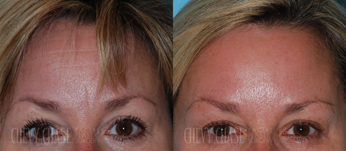BOTOX® Before and After Photo - Patient 1