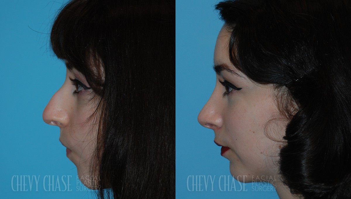 Rhinoplasty Before and After Photo - Patient 10A