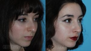 Rhinoplasty Before and After Photo - Patient 10B