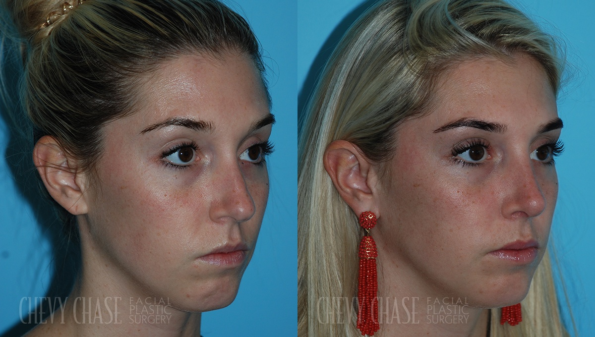 Rhinoplasty Before and After Photo - Patient 11A