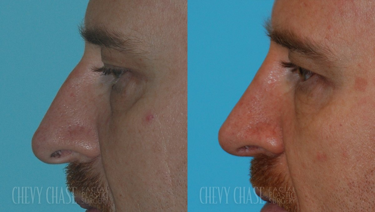 Rhinoplasty Before and After Photo - Patient 12