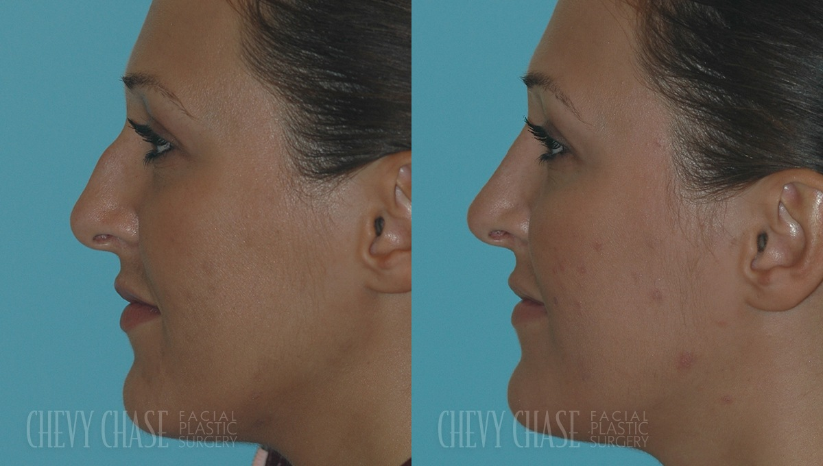 Rhinoplasty Before and After Photo - Patient 13A