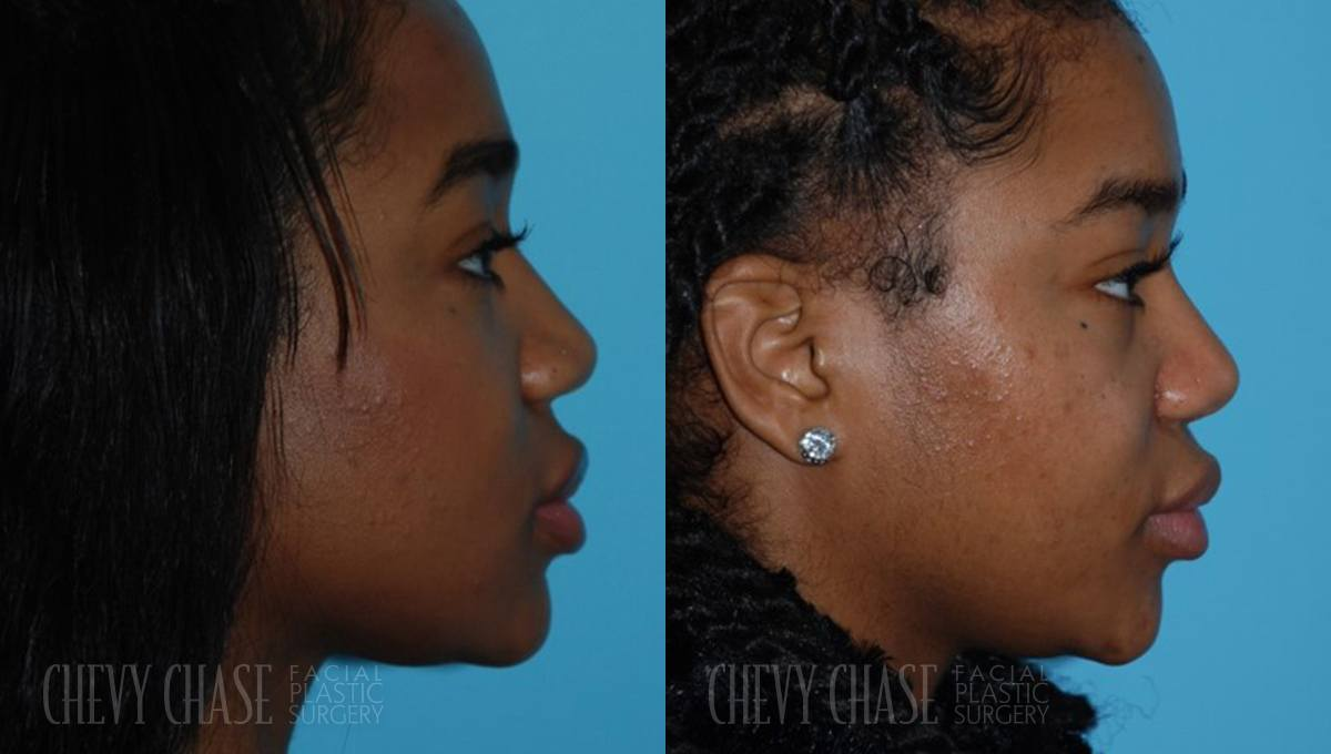 Rhinoplasty Before and After Photo - Patient 15A