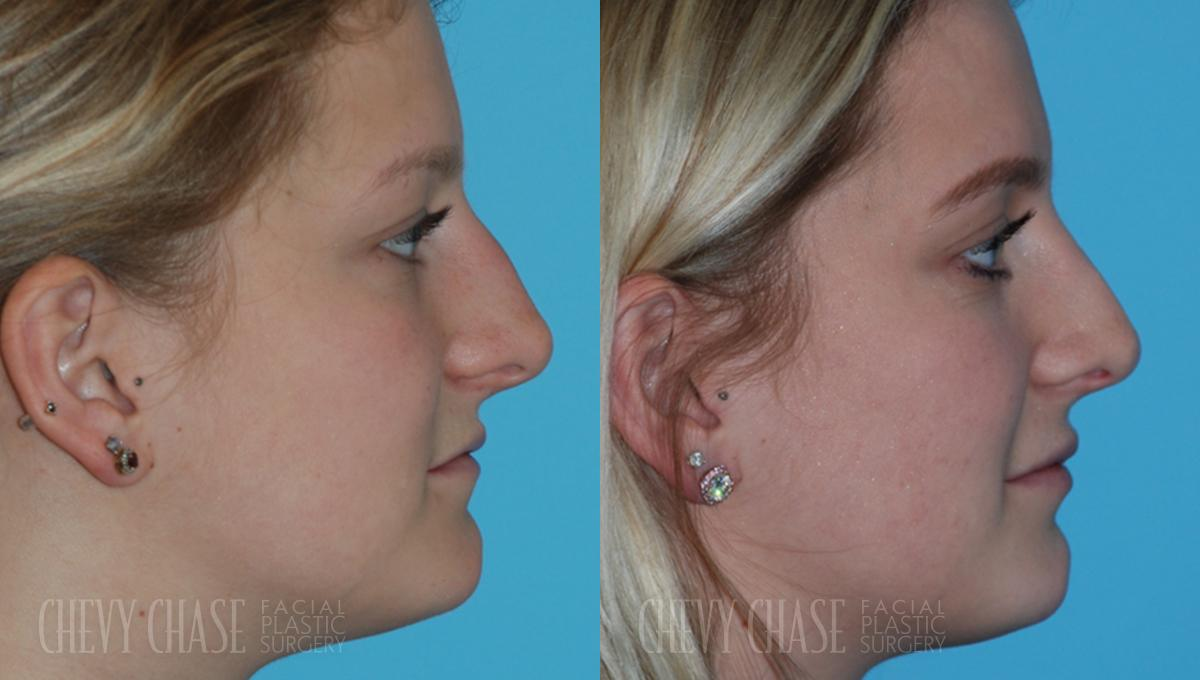 Rhinoplasty Before and After Photo - Patient 17A