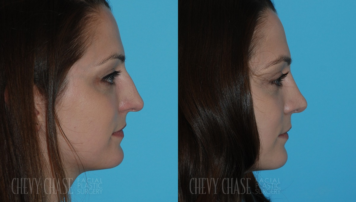 Rhinoplasty Before and After Photo - Patient 1A