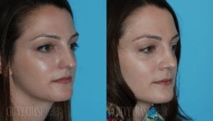 Rhinoplasty Before and After Photo - Patient 1B