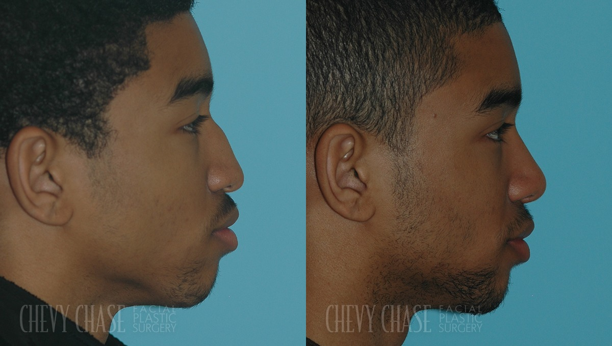 Rhinoplasty Before and After Photo - Patient 3A