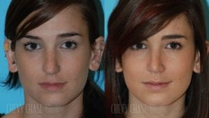 Rhinoplasty Before and After Photo - Patient 4C