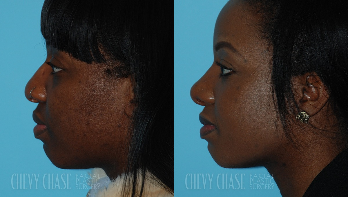 Rhinoplasty Before and After Photo - Patient 5A