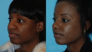 Rhinoplasty Before and After Photo - Patient 5B