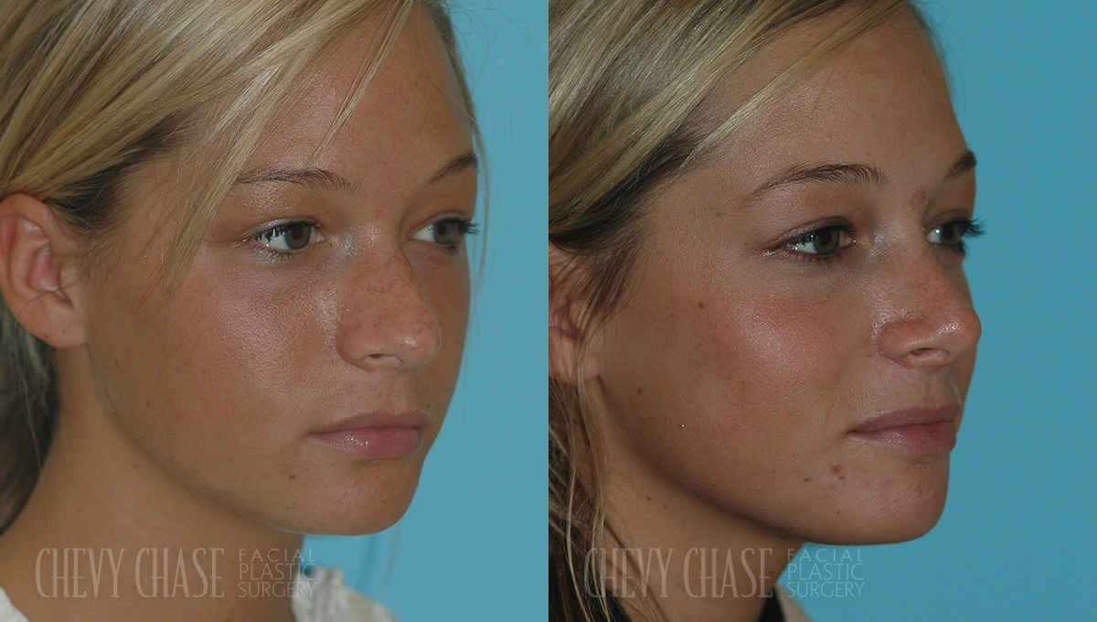 Rhinoplasty Before and After Photo - Patient 6