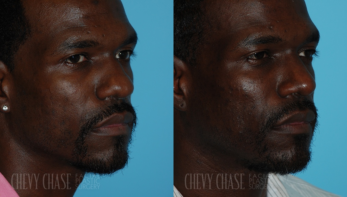 Rhinoplasty Before and After Photo - Patient 7A