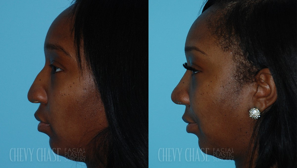 Rhinoplasty Before and After Photo - Patient 8A