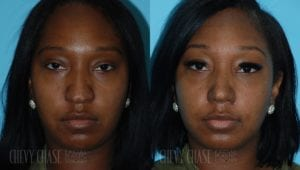 Rhinoplasty Before and After Photo - Patient 8C