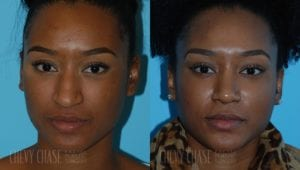 Rhinoplasty Before and After Photo - Patient 9A