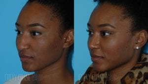 Rhinoplasty Before and After Photo - Patient 9B
