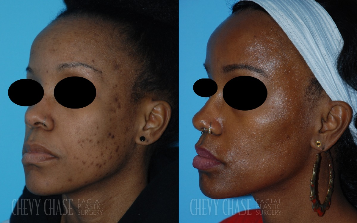 Patient 1a Chemical Peel Before and After