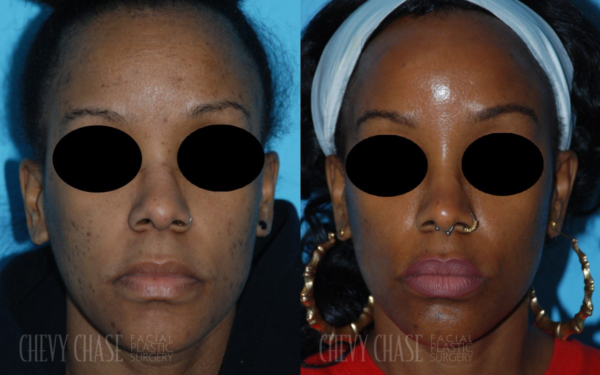 Patient 1e Chemical Peel Before and After