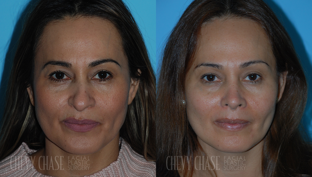 porter_chevychase_maryland_washingtondc__0009_rhinoplasty7e