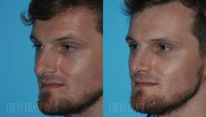 chevy-chase-washington-dc-rhinoplasty-patient-20-2