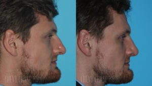chevy-chase-washington-dc-rhinoplasty-patient-20-3
