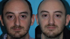 chevy-chase-washington-dc-rhinoplasty-patient-21-1